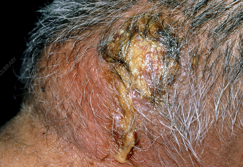 A carbuncle on the back of the neck of a patient