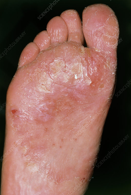 The sole of a foot affected by candidiasis