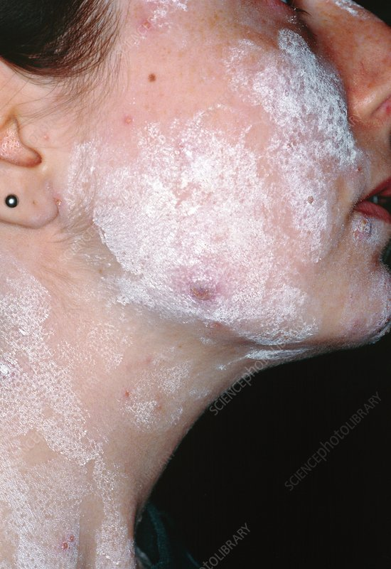 Chickenpox in adult female