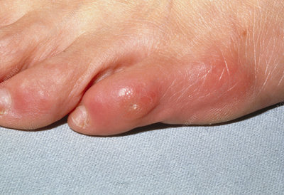 Corn (callus) on the little toe in an adult
