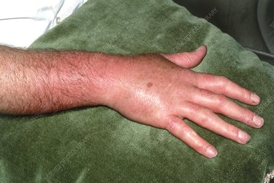 Inflammation due to cellulitis on a man's hand