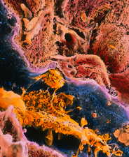Coloured SEM of a liver cell affected by cirrhosis