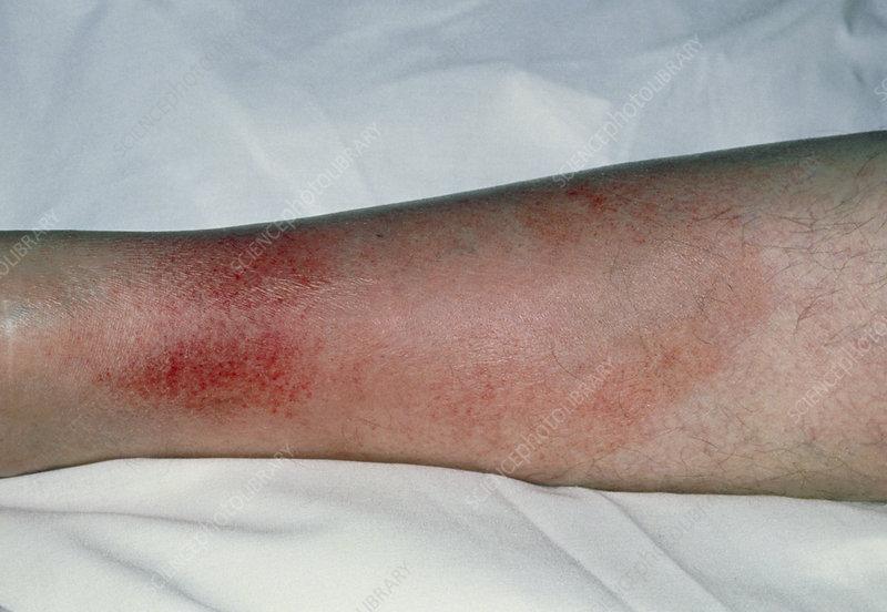 Cellulitis on the leg
