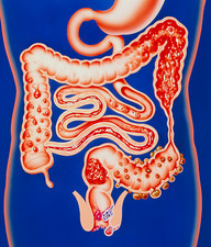 Artwork showing a range of intestinal diseases.