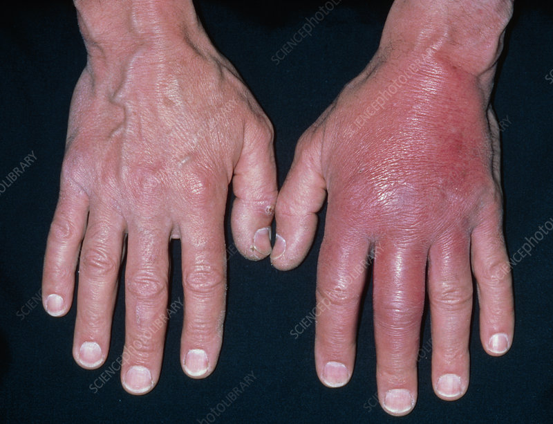 Inflammation of hand due to cellulitis