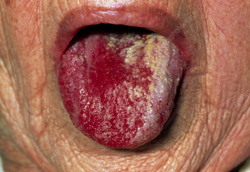 Tongue of elderly woman with oral candidiasis