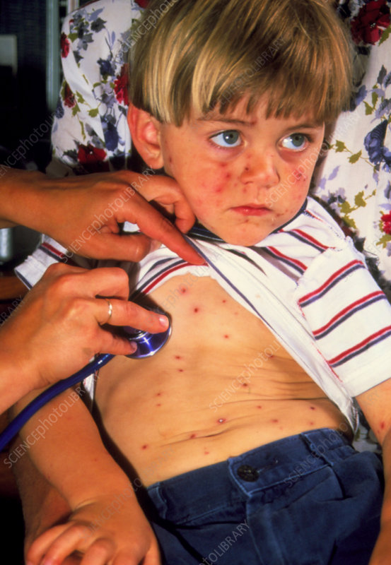 Boy, aged 3, affected by chickenpox