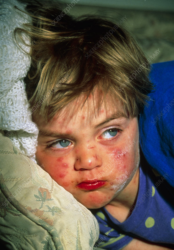 Boy, aged 3, with chickenpox has calamine applied