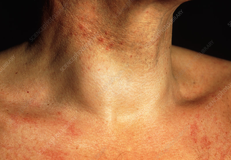 Swollen neck of man with benign thyroid cyst