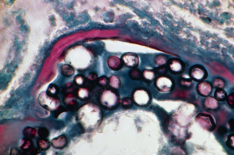 LM of Coccidioides immitis spores in human lung