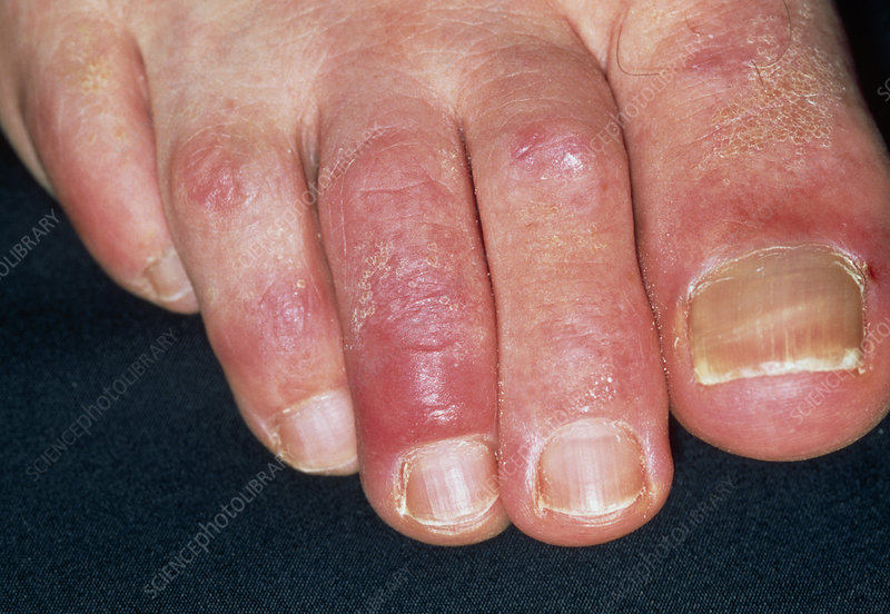 Chilblains on the toes of patient on beta blockers