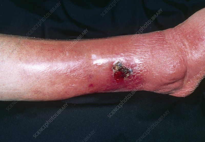 Cellulitis due to varicose ulcer of the leg