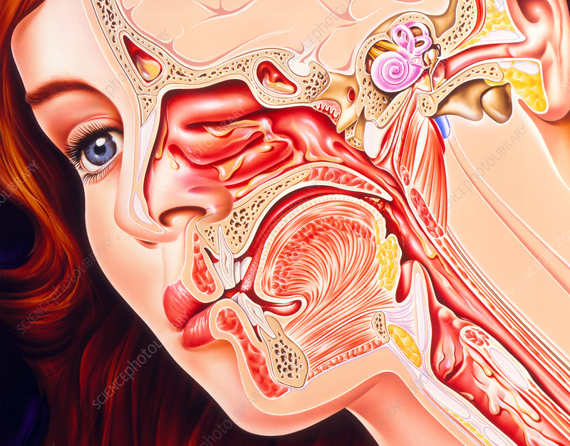 Artwork of ear, nose & throat in a cold sufferer