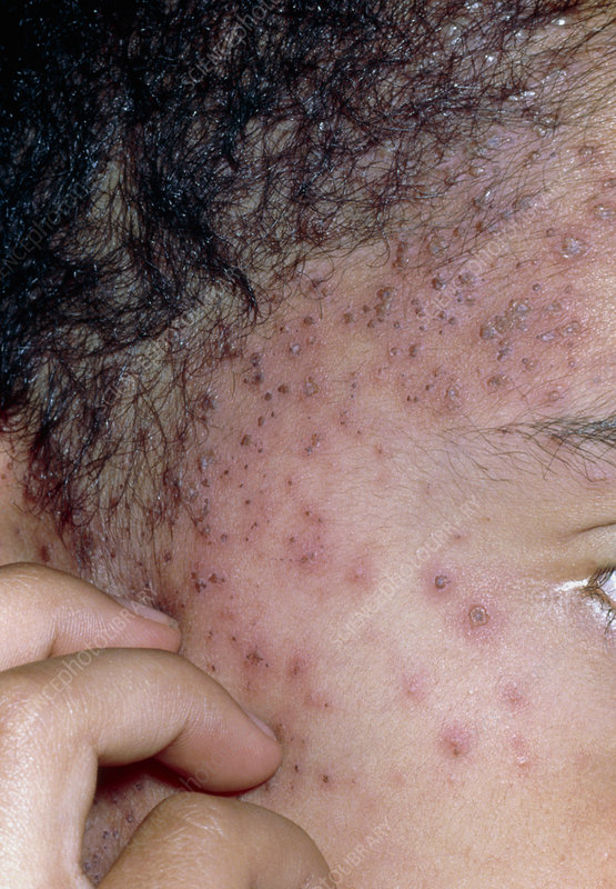 Fingers scratching chickenpox on boy's face
