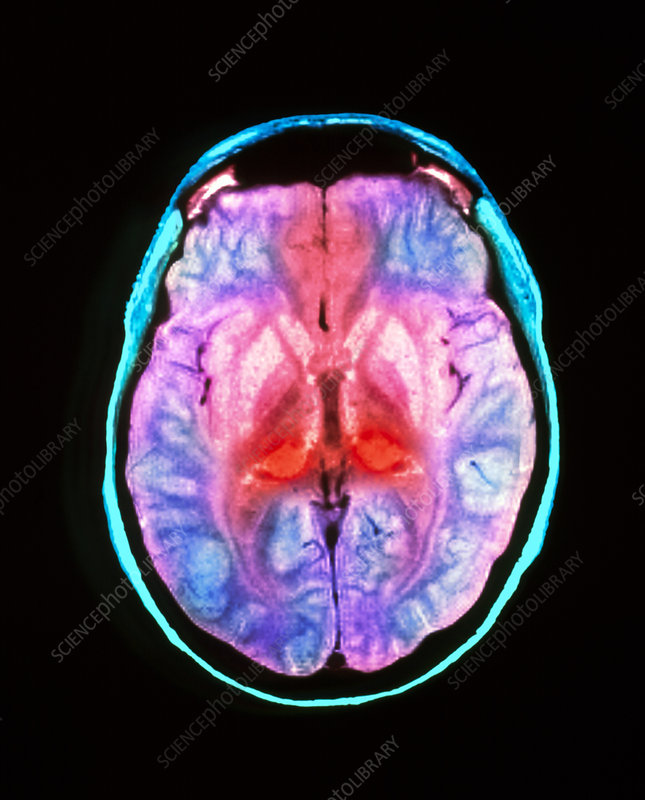 MRI scan of human brain diseased with CJD