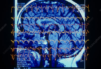 EEG traces of CJD sufferer over MRI of brain