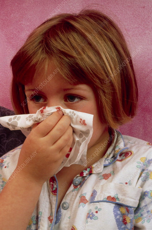 Girl blowing her nose suffering from rhinitis