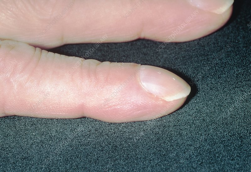 Clubbing (acropachy) of fingers from renal failure