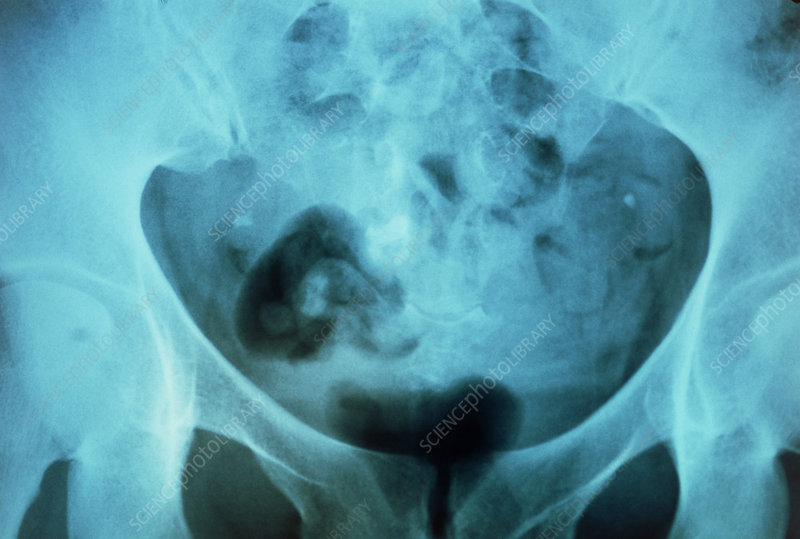 X-ray of a pelvis showing dermoid cyst with tooth