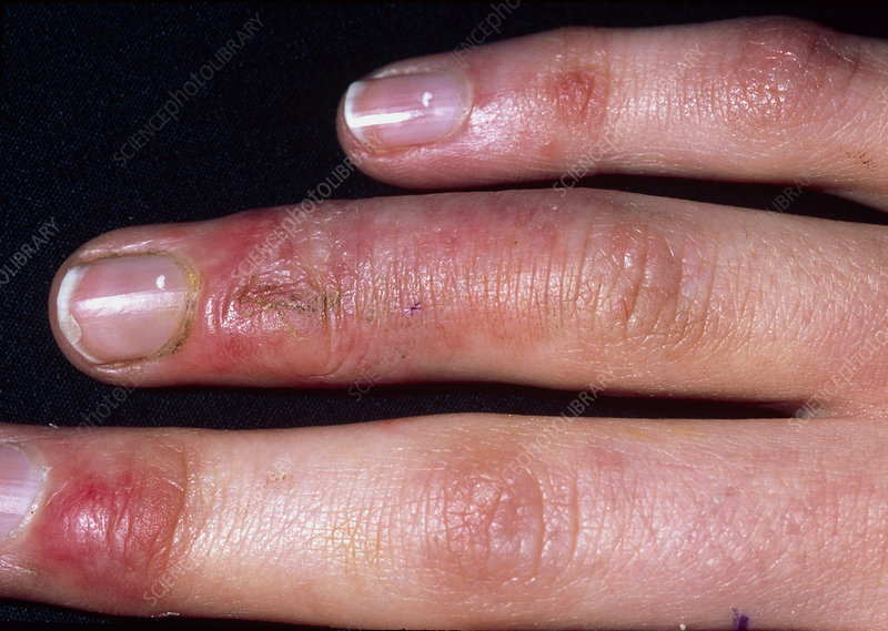 Chilblains on the fingers of a 16 year old girl