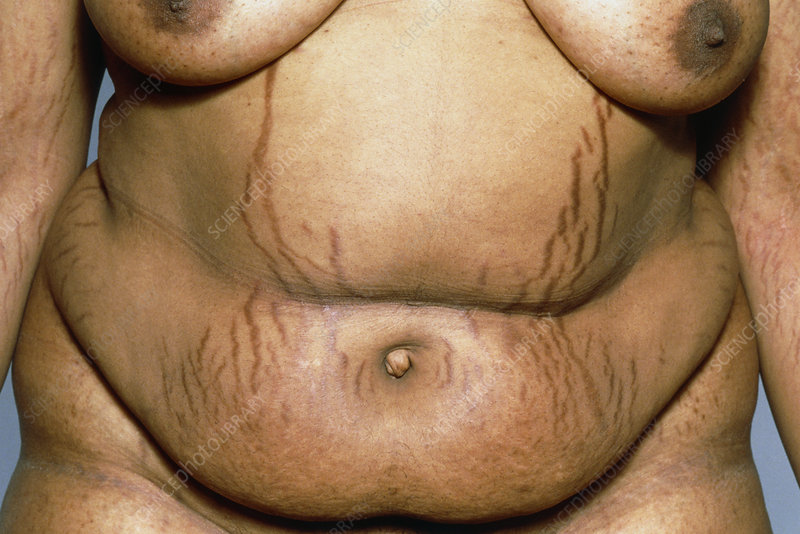 Stretch marks caused by Cushing's syndrome