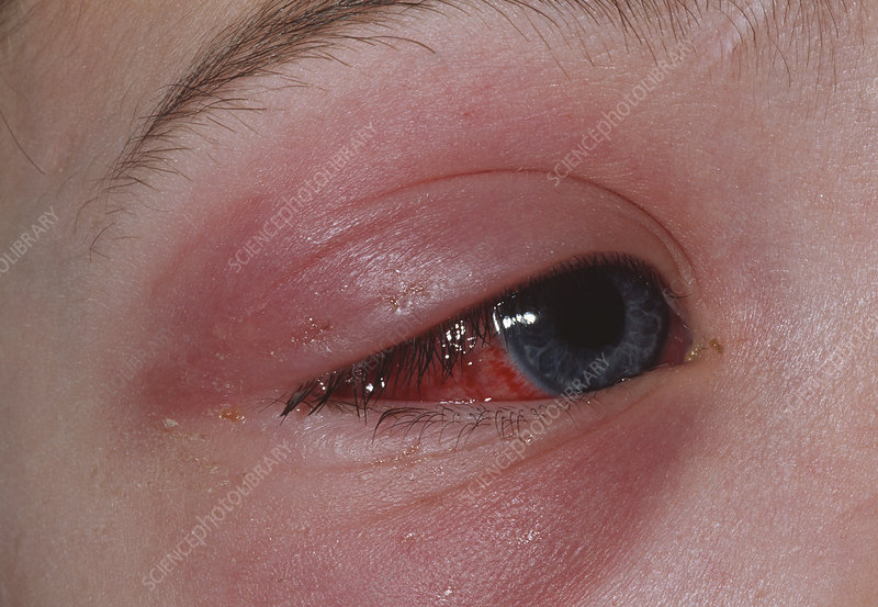 Young boy with inflamed eye due to cellulitis