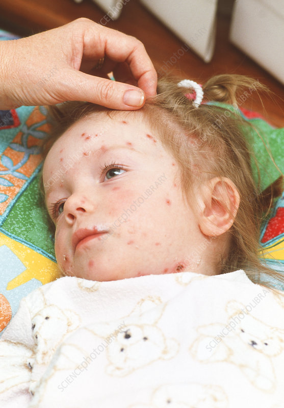 You Contagious After Chicken Pox Vaccine Varicella Vaccine Rash Contagious