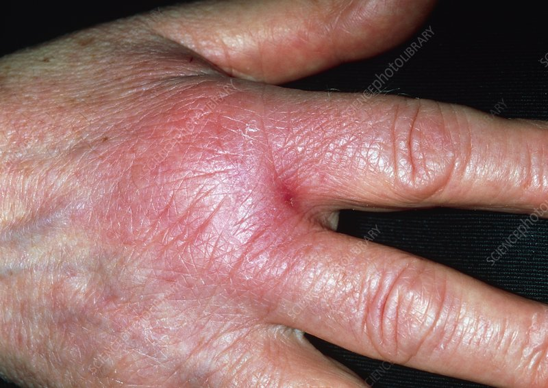 Cellulitis on hand