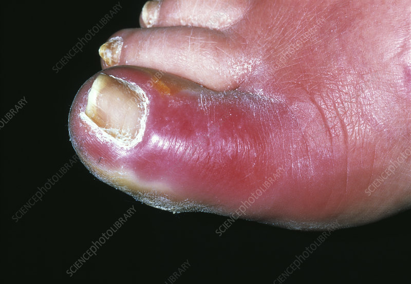 Skin infection on toe