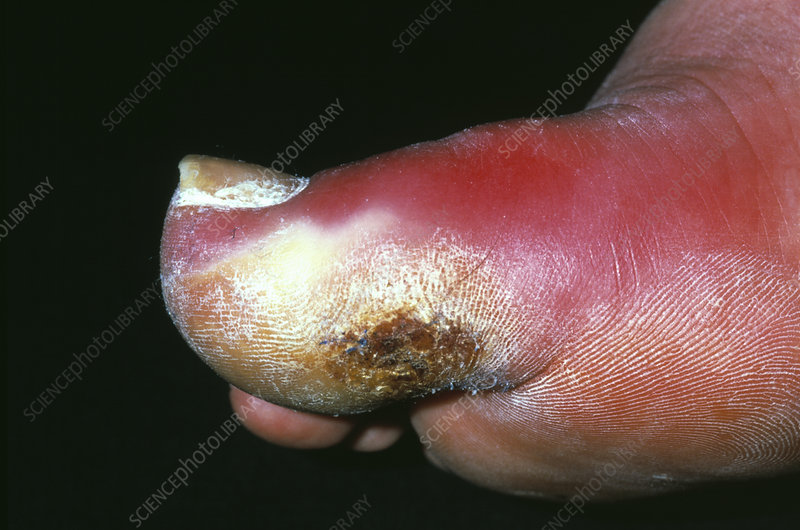 Cellulitis infection