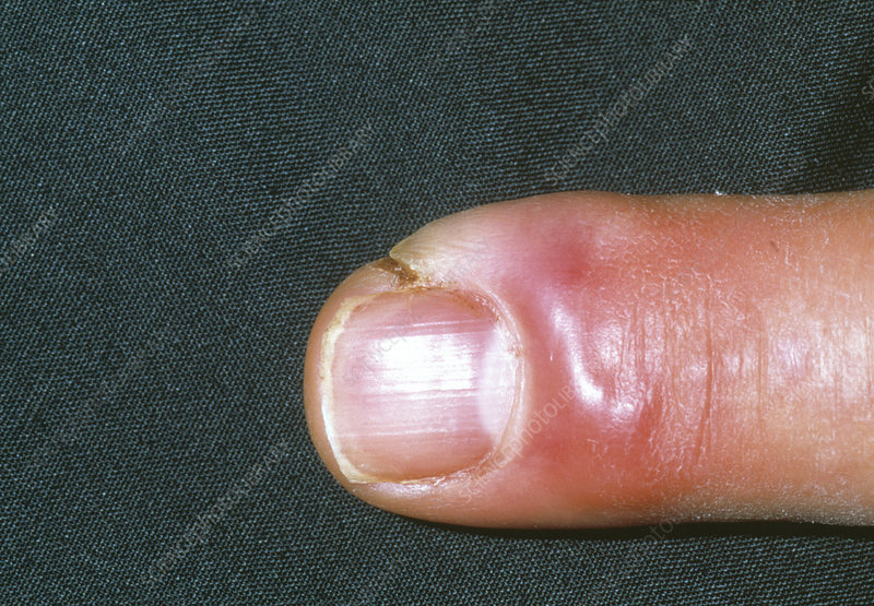 Cellulitis infection on a finger
