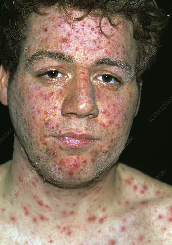 mild case of chickenpox #11