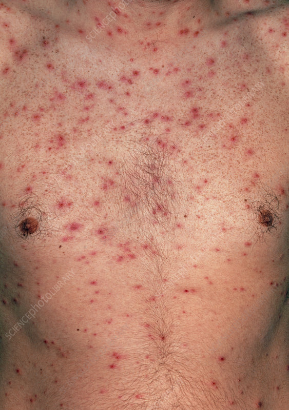 Chickenpox blisters on chest