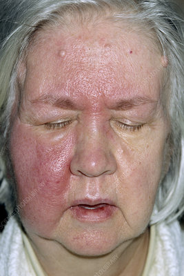 Apologise that, Treatment of facial cellulitis are