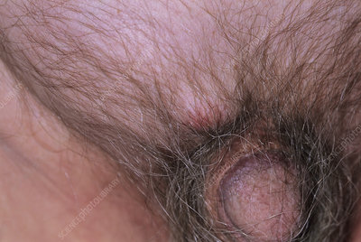 Sebaceous cyst and inguinal hernia