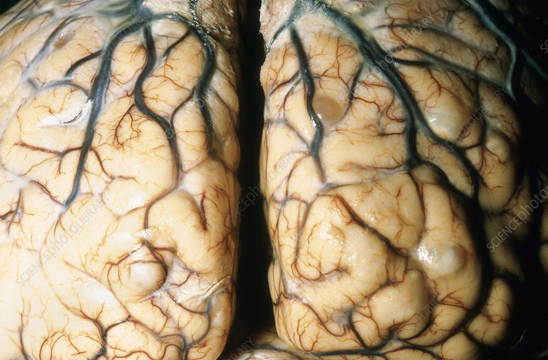 Cysticercosis-affected brain