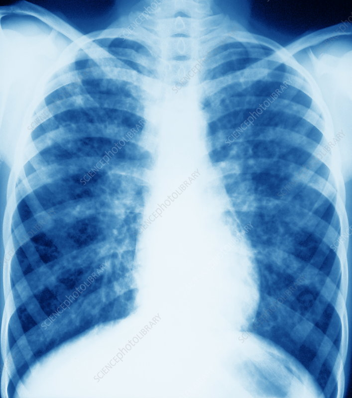 Cystic fibrosis, X-ray