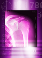 Calcified shoulder joint, X-ray