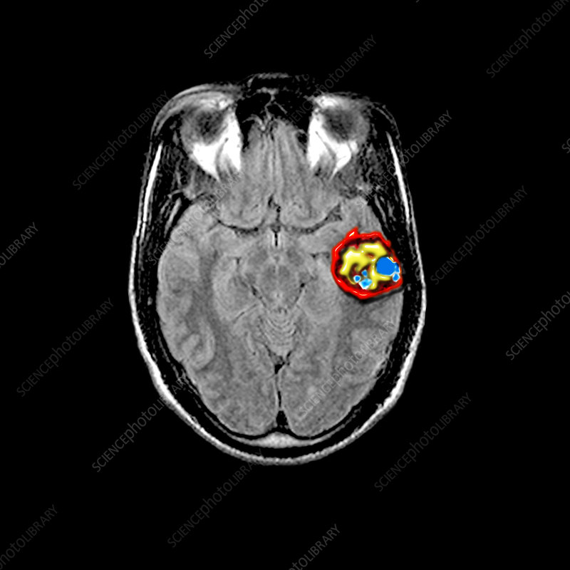 Temporal Lobe Cavernous Malformations