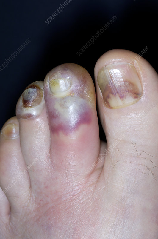 Cellulitis of the toes