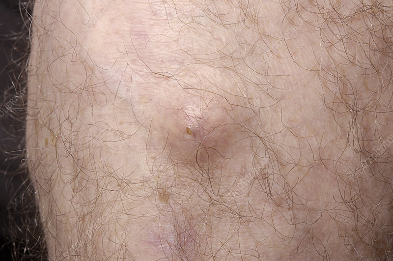 Sebaceous Cyst Pubic Area