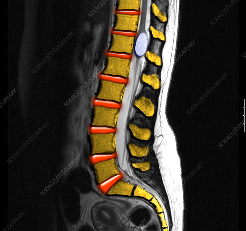 Benign Cyst in the Spine