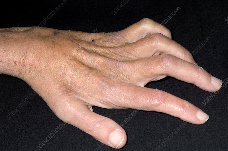 Claw hand due to nerve compression