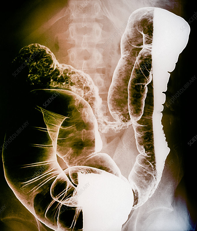 Crohn's disease, X-ray