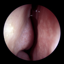 Nasal inflammation, rhinoscope view