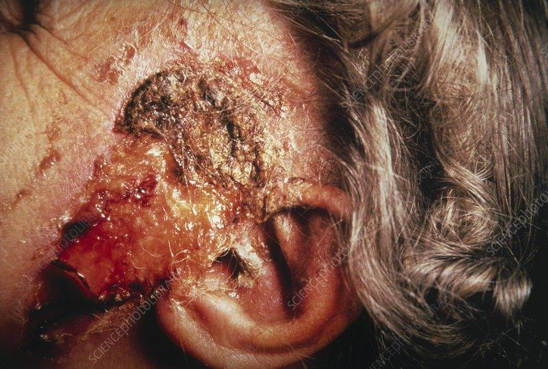 Clinical photo of squamous carcinoma of skin