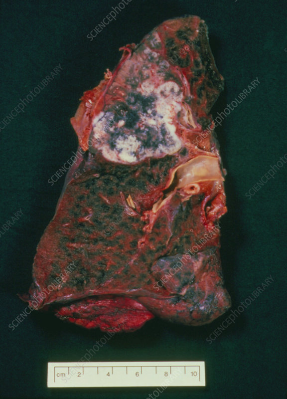 Post-mortem cancerous lung of cigarette smoker