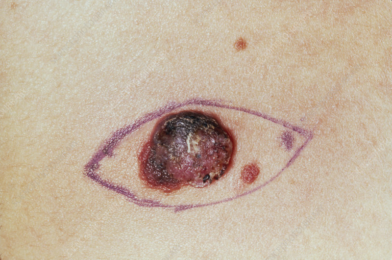 Close up of a malignant melanoma before excision