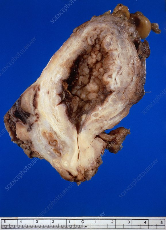 Excised specimen of cancerous human bladder