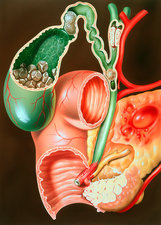 Illustration of pancreatic carcinoma